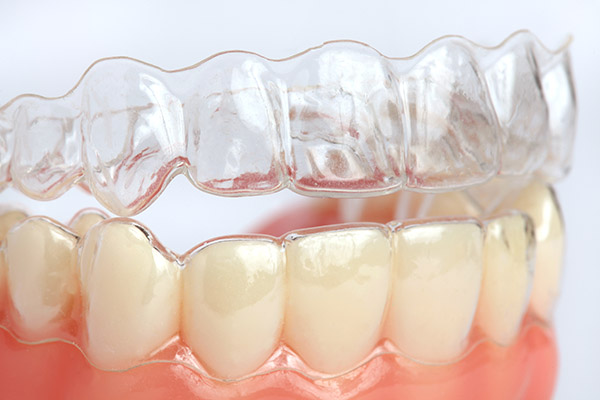 Invisalign Options To Have Straight Teeth Fast