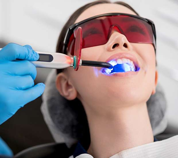 West Hollywood Professional Teeth Whitening